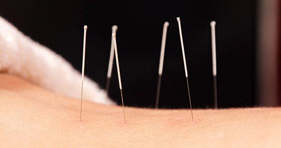 Akupunkturbehandlung. Sechs Nadeln stecken im Rücken einer Patientin.