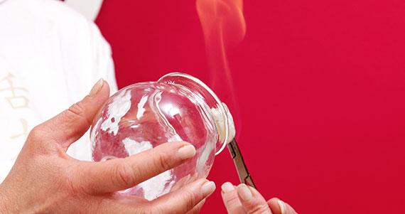 Brigitte Weber hält einen brennenden Wattebausch an ein Schröpfglas, um ein Vakuum zu erzeugen.